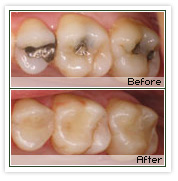 Tooth colored composite fillings.